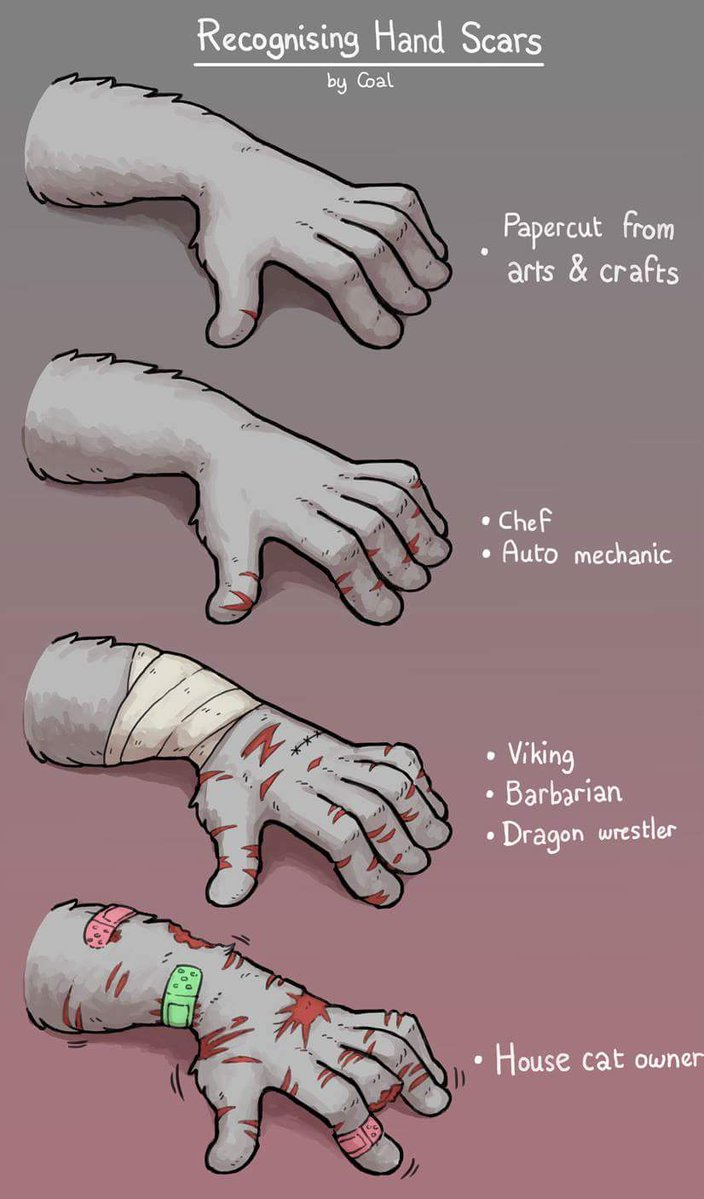 recognizing hand scars